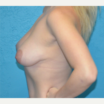25-34 year old woman treated with Breast Lift with Implants before 3791342