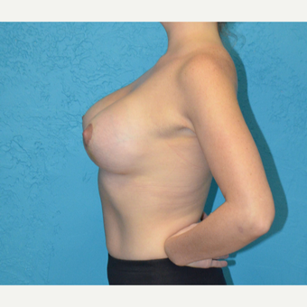 25-34 year old woman treated with Breast Lift with Implants after 3791342