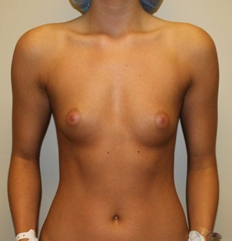 Moderate profile 300CC saline implants filled to 330CC before 1017476