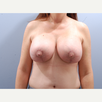 45-54 year old woman treated with Breast Implant Revision after 3610880