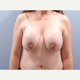 45-54 year old woman treated with Breast Implant Revision before 3610880