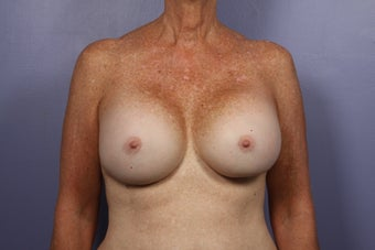 63 yr old Breast Revision before 957278