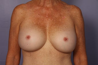 63 yr old Breast Revision after 957278