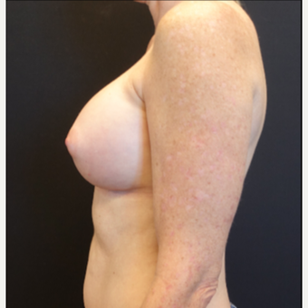 35-44 year old woman treated with Breast Implants after 3529808