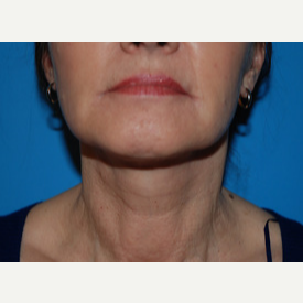 55-64 year old woman treated with Facelift, Necklift after 3065351