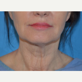 55-64 year old woman treated with Facelift, Necklift before 3065351