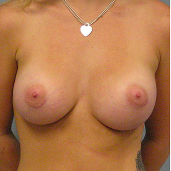 28 year old woman treated with Breast Augmentation after 3467321