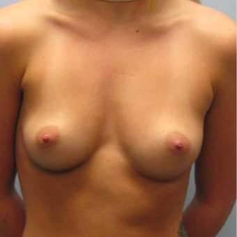 28 year old woman treated with Breast Augmentation before 3467321