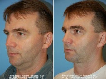 Neck Liposuction before 212297