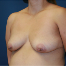 35-44 year old woman treated with Breast Lift with Implants before 3554347