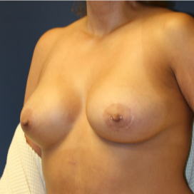 35-44 year old woman treated with Breast Lift with Implants after 3554347