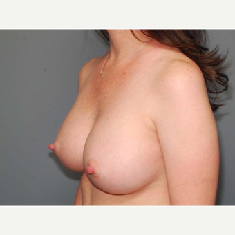 36 y/o Transaxillary Submuscular Breast Augmentation after 3066386