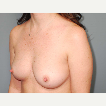 36 y/o Transaxillary Submuscular Breast Augmentation before 3066386