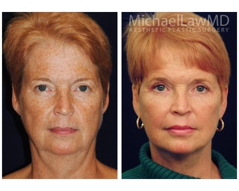 Full Facial Rejuvenation: Necklift before 1196648
