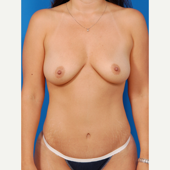 35-44 year old woman treated with Breast Augmentation before 3576896