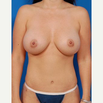 35-44 year old woman treated with Breast Augmentation after 3576896