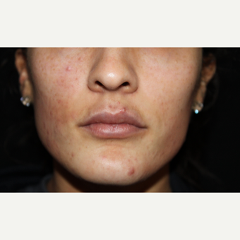 18-24 year old woman treated with Lip Implants before 2789576