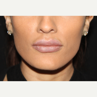18-24 year old woman treated with Lip Implants after 2789576