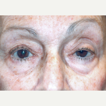 75 and up year old woman treated with Ptosis Surgery before 3085549