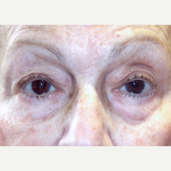 75 and up year old woman treated with Ptosis Surgery after 3085549