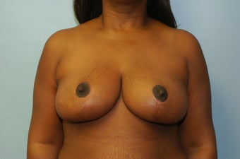 Breast Reduction 50 Year Old Female Breast Reduction - No Implant after 1164636