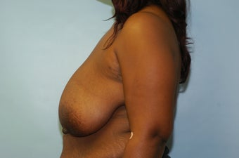 Breast Reduction 50 Year Old Female Breast Reduction - No Implant 1164636