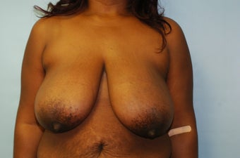 Breast Reduction 50 Year Old Female Breast Reduction - No Implant before 1164636