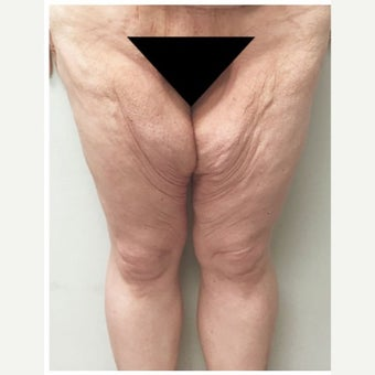 35-44 year old woman treated with Thigh Lift before 2243384