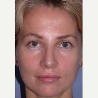 35-44 year old woman treated with Rhinoplasty after 3521210