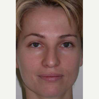 35-44 year old woman treated with Rhinoplasty before 3521210