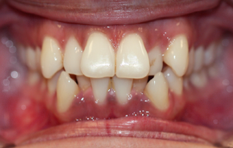 18-24 year old woman treated with Braces