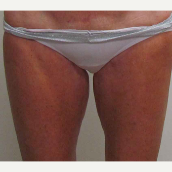 Thigh Lift for this 48 Year Old Woman after 3042888