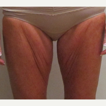 Thigh Lift for this 48 Year Old Woman before 3042888