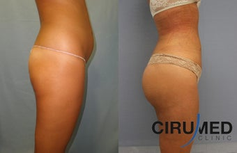 Brazilian butt lift with Water Jetstream Liposculpture  1104280
