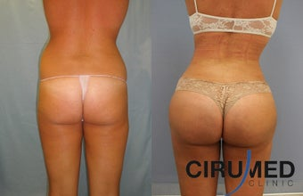 Brazilian butt lift with Water Jetstream Liposculpture  before 1104280