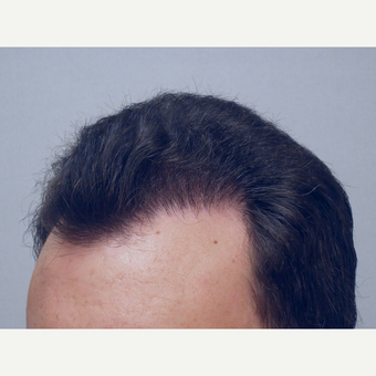 Hair Transplant after 3241306