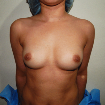 25-34 year old woman treated with Breast Lift before 3175212