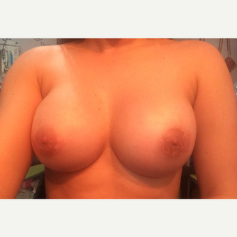 25-34 year old woman treated with Breast Lift after 3175212
