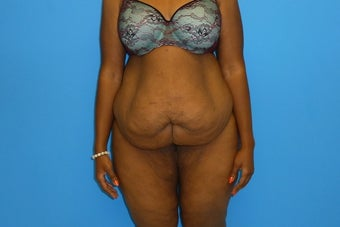 38 Year Old Female Underwent Abdominoplasty (Tummy Tuck) before 1195660