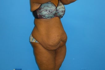38 Year Old Female Underwent Abdominoplasty (Tummy Tuck) 1195660