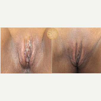 25-34 year old woman treated with Labiaplasty