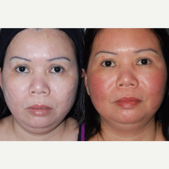 25-34 year old woman treated with Acne Scars Treatment before 2744395