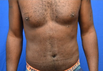 Male Liposuction of Abdomen and Waist after 1376358