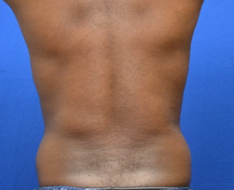 Male Liposuction of Abdomen and Waist 1376358