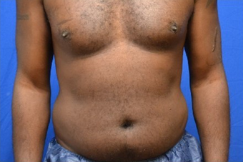 Male Liposuction of Abdomen and Waist before 1376358