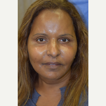 55-64 year old woman treated with Cheek Augmentation