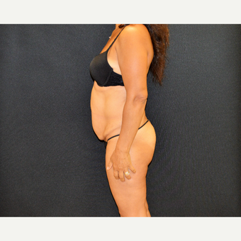This patient underwent Dr. Frank Campanile patented CLASS Tummy Tuck