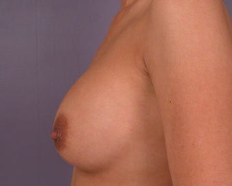 Breast Implant Correction before 281306