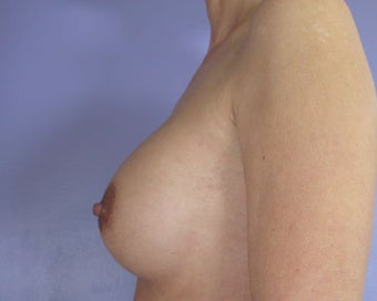 Breast Implant Correction after 281306
