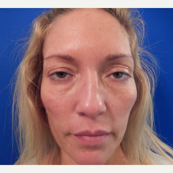 45-54 year old woman treated with Sculptra before 3762777